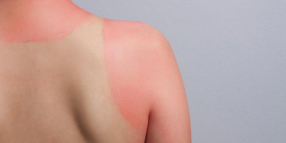 Coups de soleil : quel est cet aliment qui pourrait vous éviter d'en attraper ?