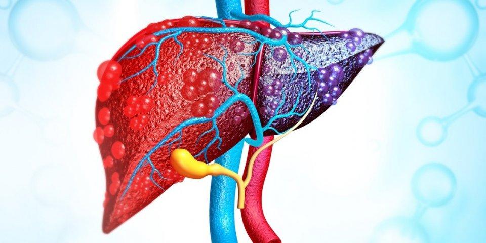 Cirrhose du foie : les 7 symptômes d'alerte