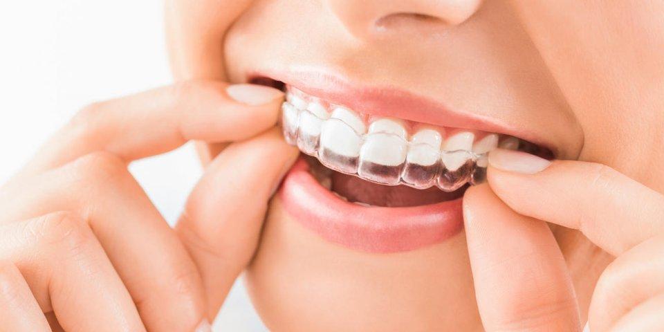 Ces kits pour blanchir les dents favorisent leur érosion