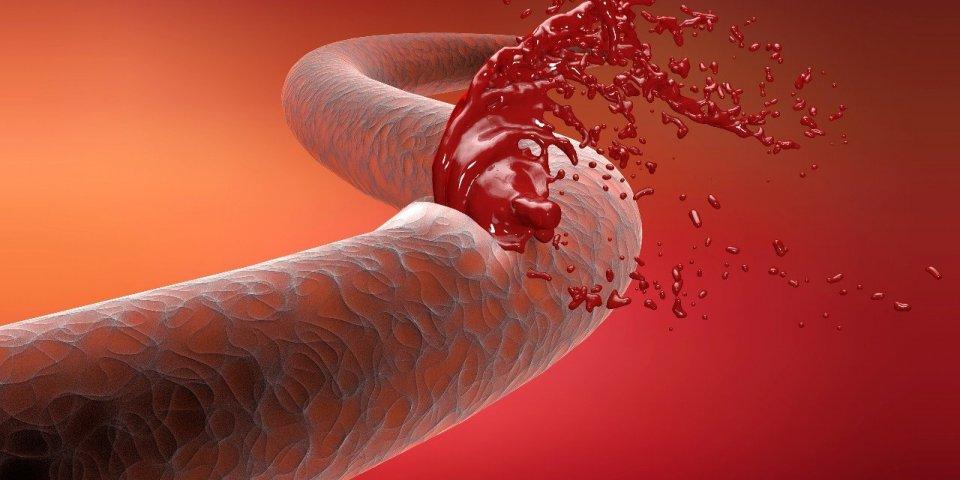 Covid-19 : les malades auraient plus de risques de faire une hémorragie