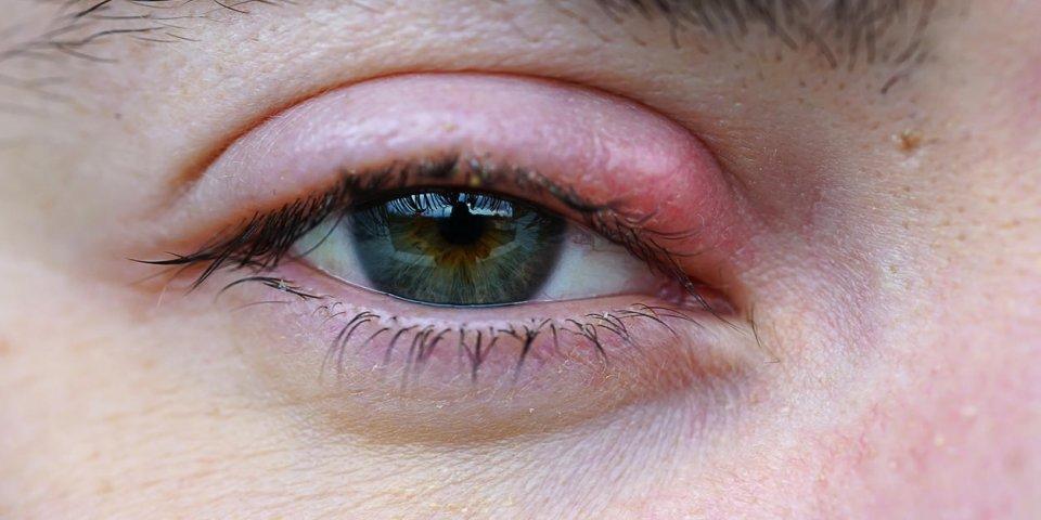 eye stye macro