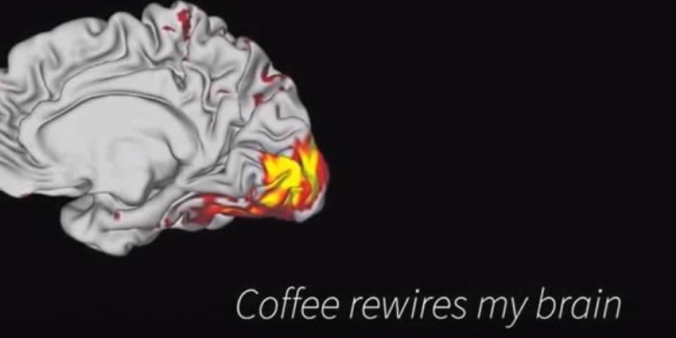 Vidéo. Les effets du café sur votre cerveau