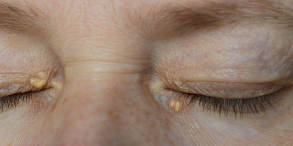 close up of woman eyes with xanthelasma on the eyelids hypercholesterolemia, high cholesterol