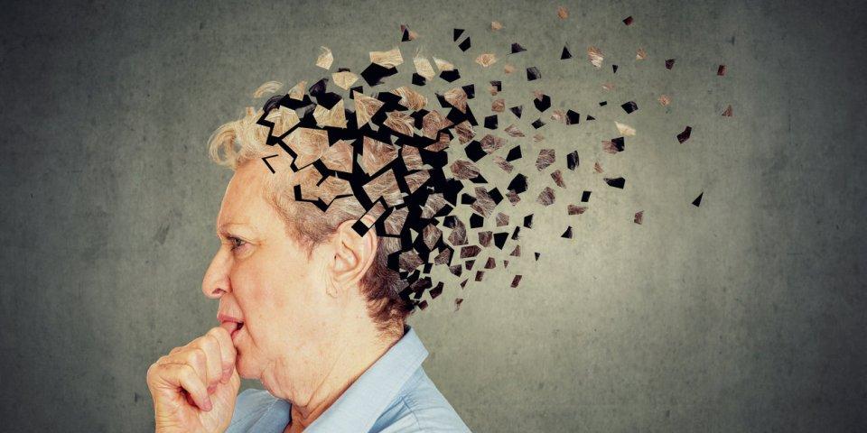 Alzheimer : quels sont les quatre types de propagation de la maladie ?