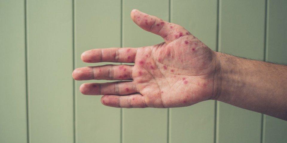 Sénégal : la mystérieuse maladie de peau touchant des pêcheurs serait-elle la varicelle ?