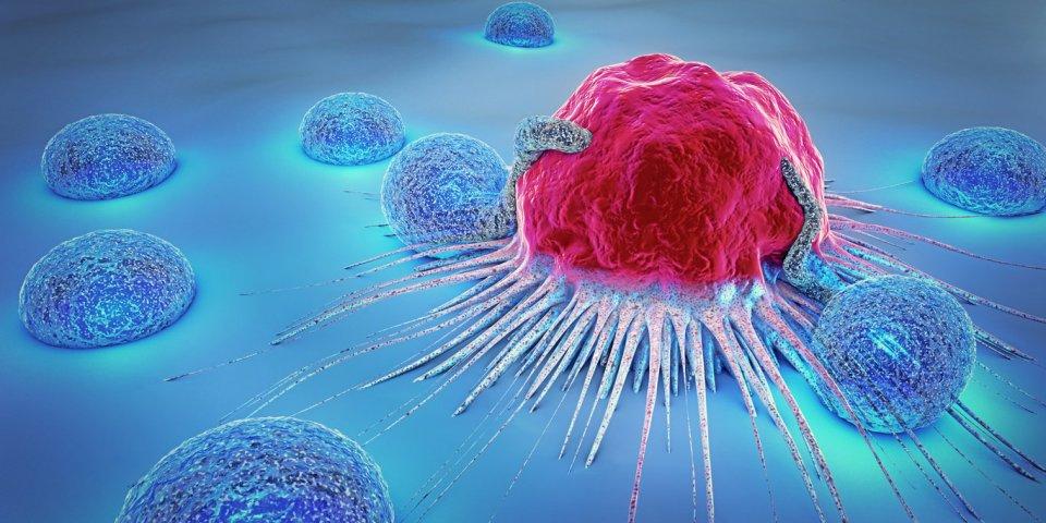 Quels sont les cancers dont on guérit le moins ?
