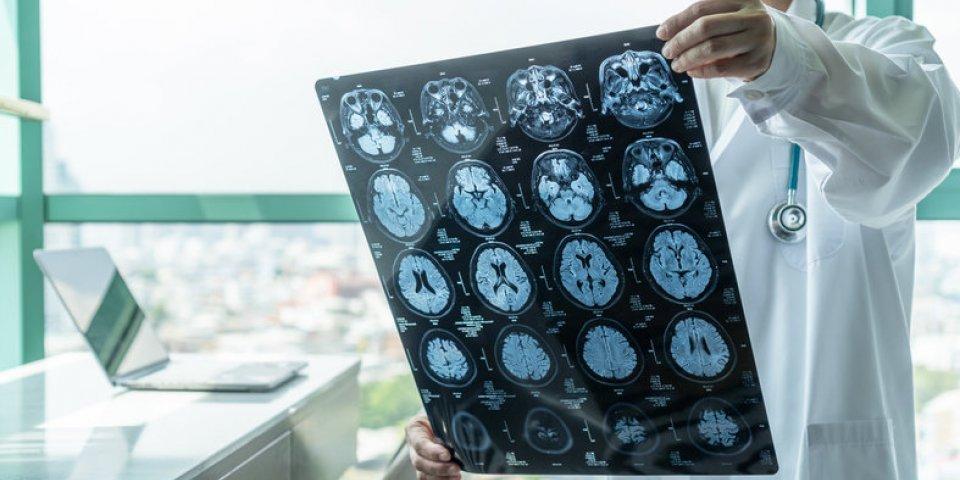 Canada : 42 personnes touchées par une maladie du cerveau inconnue