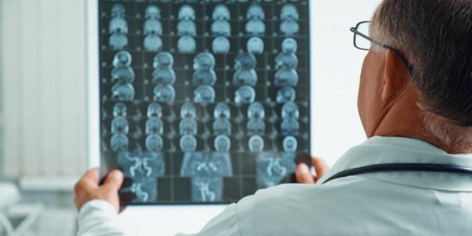 médecin homme méconnaissable examine irm image de tête humaine à l'hôpital