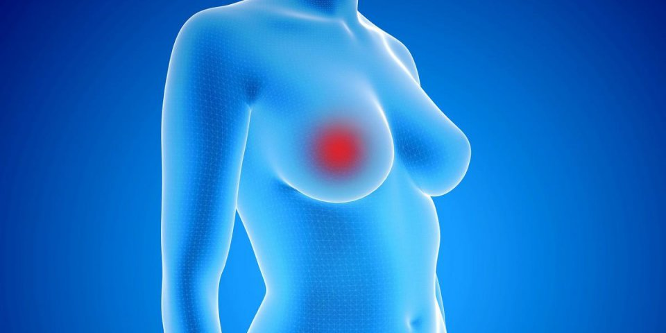 3d rendering illustration of female body with breast cancer