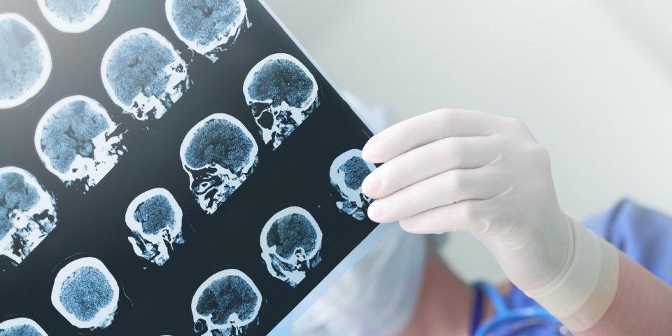 Epilepsie : existe-t-il des causes psychologiques ?