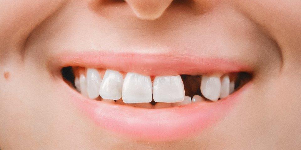 Démence : pourquoi perdre vos dents augmente les risques