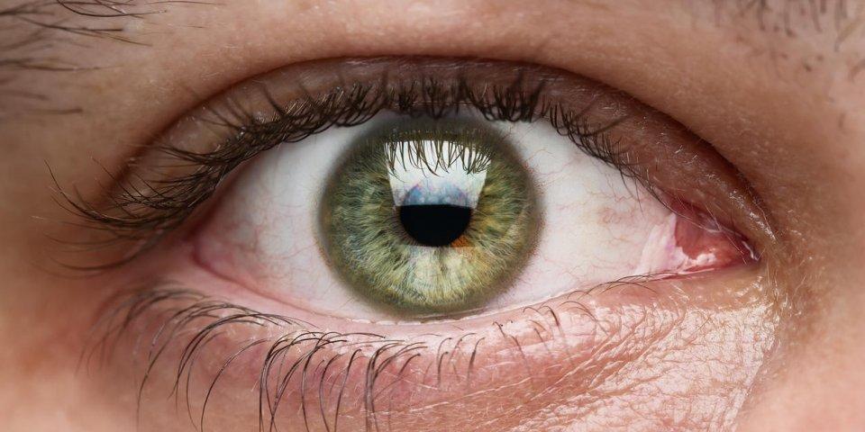 Maladie de la cornée : le kératocône
