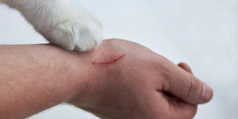Un homme contracte une septicémie à cause d'une griffure de chat