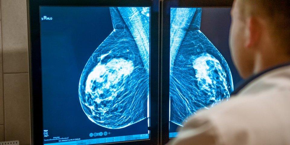 Cancer du sein : cette nouvelle technique de lecture des mammographies qui améliore le dépistage