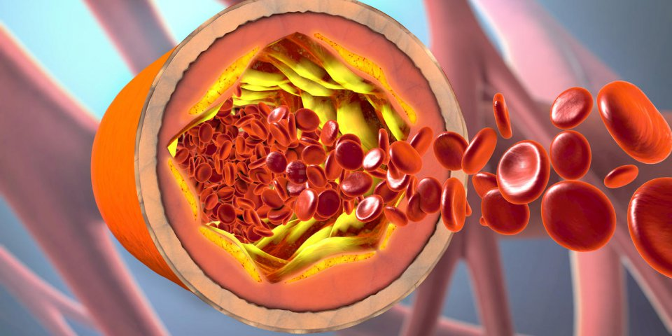 3d illustration of a precipitated and narrowing blood vessels or arteriosclerosis
