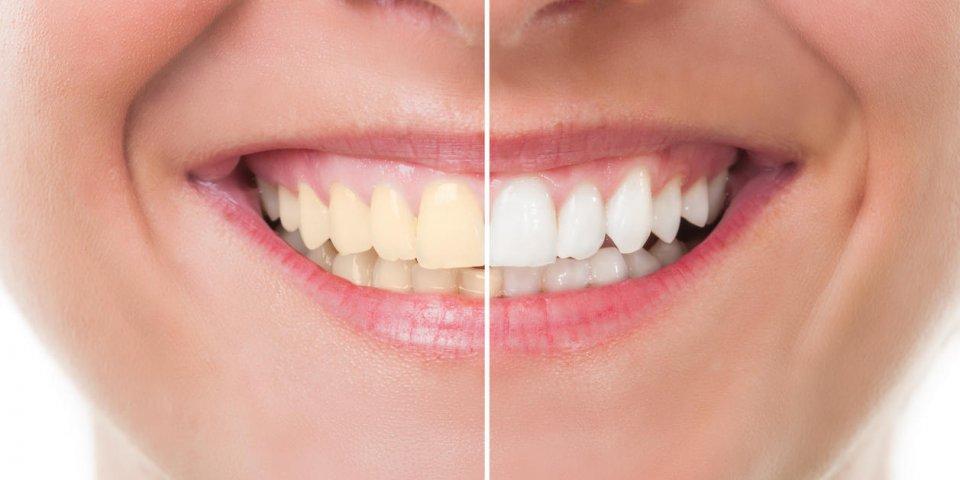 2 astuces pour blanchir ses dents naturellement
