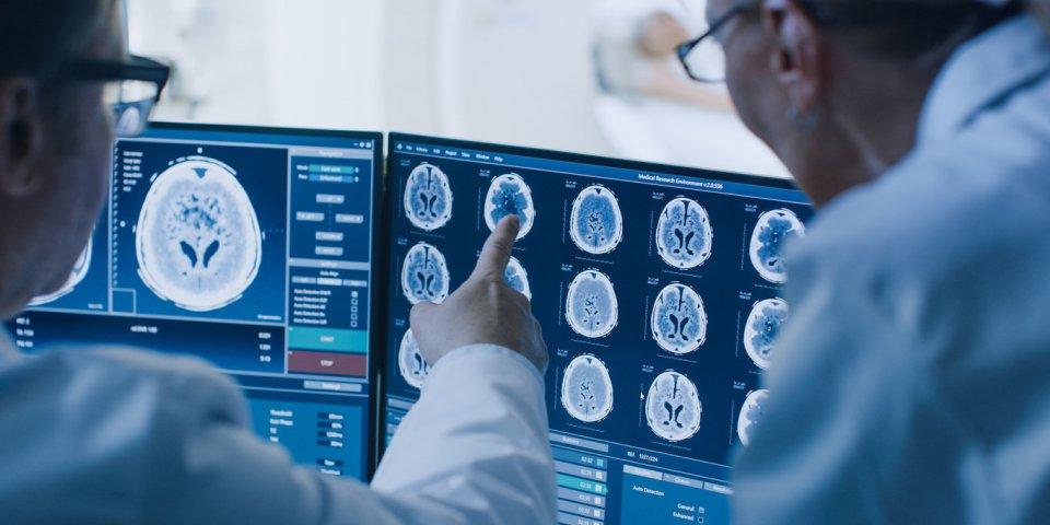 Covid-19 : le cerveau serait touché dans un tiers des cas