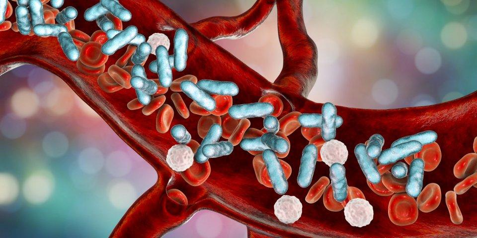 Choc : la septicémie est responsable d'1 décès sur 5 !