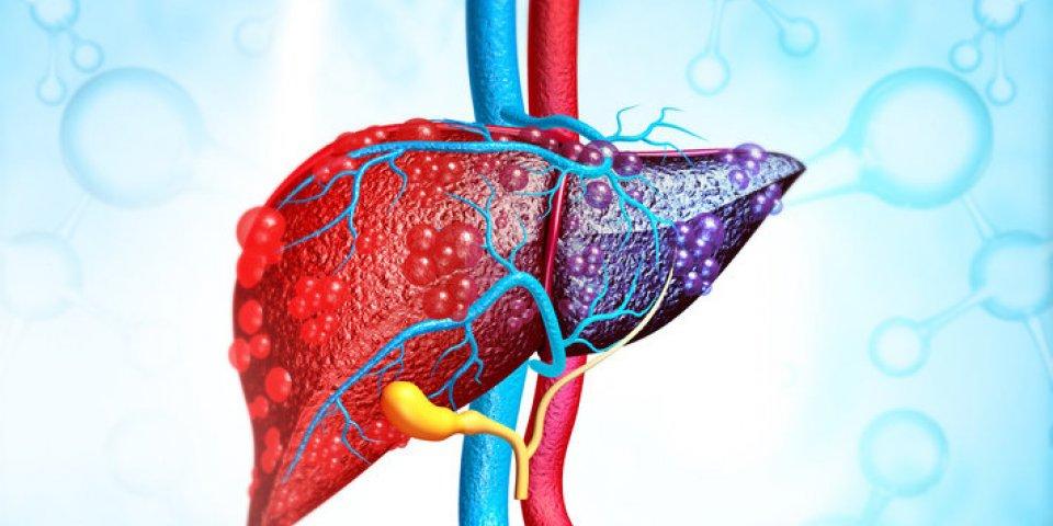 Cancer : l'organe le plus souvent métastasé selon une étude