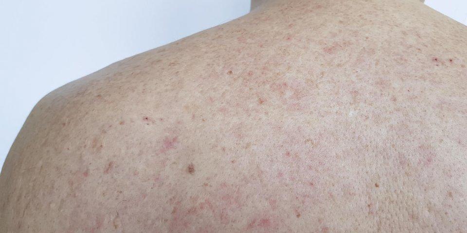 birthmark pimples on the back men bad skin