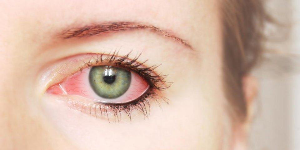 Pourquoi j'ai les yeux rouges ?